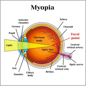 Myopia univision eye centre in myopia short sightedness the eye is longer than normal or the cornea is too steep so that light rays focus in front of the retina ccuart Choice Image
